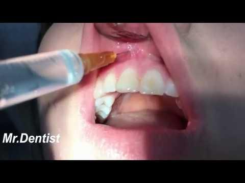 Dental Anesthesia Injection ! - YouTube
