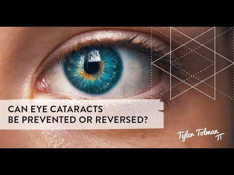 Can eye cataracts be prevented or reversed? - YouTube