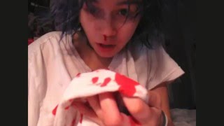 i filmed one of my daily nose bleeds   kylie the jellyfish