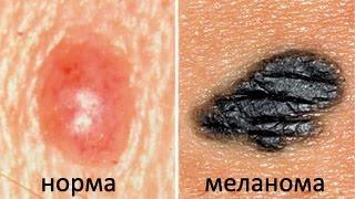 Как распространяются метастазы при раке (на примере меланомы)?(Меланома - рак, при котором метастазы появляются очень быстро. Что такое метастаз? Что такое первичная..., 2017-02-28T17:28:42.000Z)