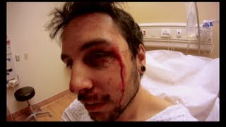 When Vacation Attack - Snowboarder Slams Into Tree [ FULL SHOW ]