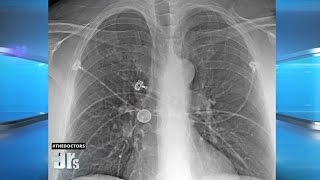 Coin Lodged In Man S Lungs