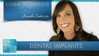 Dental Implants for Missing Teeth: Houston Cosmetic Dentist Dr. Amanda Canto DDS Thumbnail