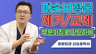 파손보형물 교체, 부분마취로 간단히| SHINYU CL…