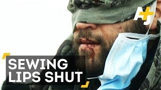 Refugees Sew Lips As Calais Jungle Is Demolished