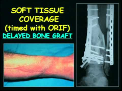 Salvaging Severe Pilon Fractures
