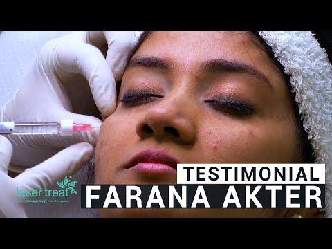 Farhana Akter's Testimonial | Dr. Sarker Mahbub Ahmed Shamim | Laser Treat in Bangladesh 2019