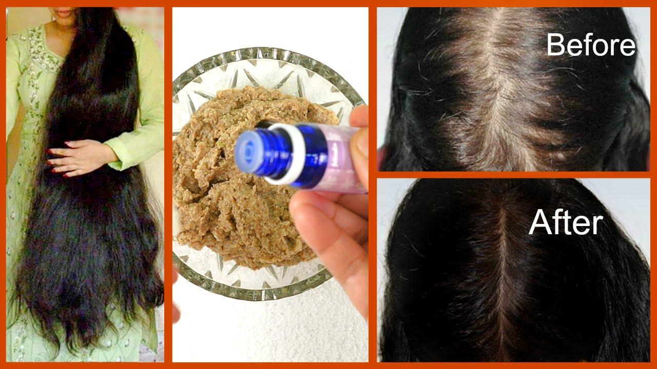 Stop Severe Hair Fall Dandruff Regrow New Hair 100 Works Youtube
