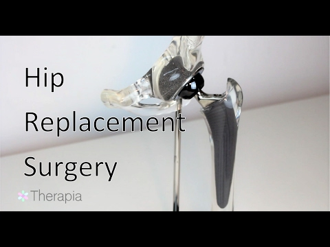 Hip Replacement Surgery - Joint Arthroplasty