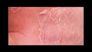 Anti Itch Cream  Revitol Eczema Cream Thumbnail