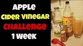 1 Week: Bragg Apple Cider Vinegar Challenge (Pics) + Intermittent Fasting| 70 lb Weight Loss Journey