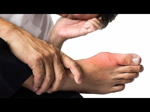 food-for-gout