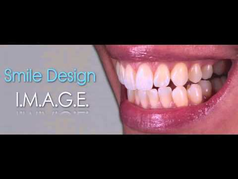Designing the Perfect Smile