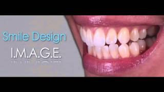 Designing the Perfect Smile Thumbnail