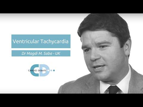 Ventricular Tachycardia - Dr Magdi M Saba