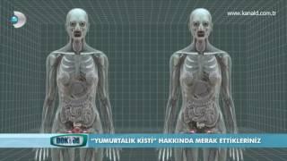 Yumurtalık Kisti ve Tedavi Yöntemleri