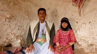 تقرير أممي: 48 ألف فتاة قاصر يتزوجن يوميا