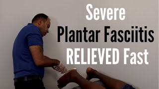 Severe Plantar Fasciitis Pain RELIEVED Fast (REAL TREATMENT!!!)