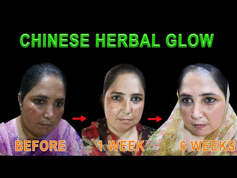 Burned Skin Treatment With Chinese Herbal Glow | Acne-Prone