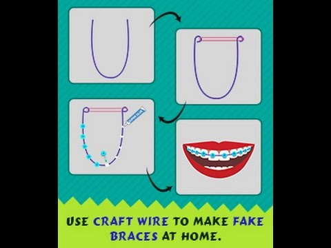 Diy guide on how to make fake braces that look real youtube solutioingenieria Choice Image