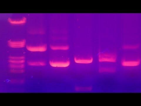 Agarose Gel Electrophoresis - Amrita University