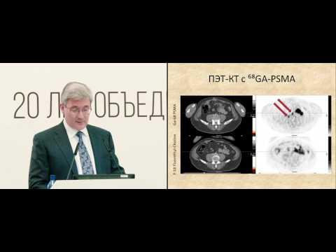 Радиологическое лечение рака молочной железы