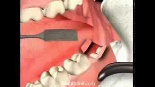 Стоматология лечение зубов имплантация в Москве Санкт-Петербурге протезирование европейское качество(, 2014-03-28T22:26:00.000Z)