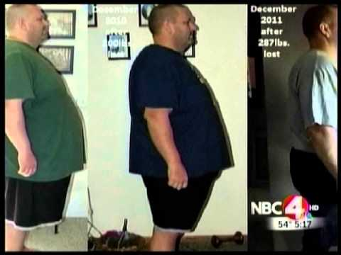 Extreme Weight Loss Skin Extreme Weight Loss an...