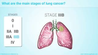 Learn more about lung cancer at http://www.youandlungcancer.com this animation explains how staging is a system that doctors use to describe or c...