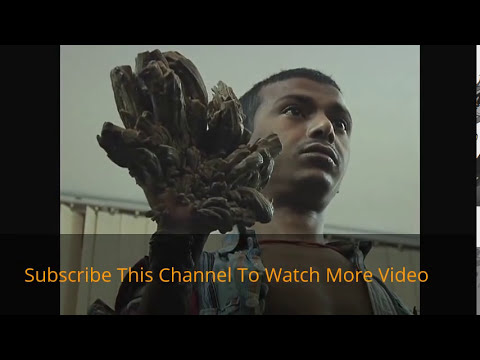 Live Surger Video.. Tree Man in Bangladesh