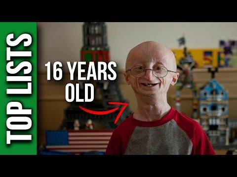 10 Most Interesting Rare Diseases
