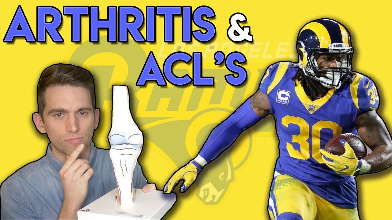 Todd Gurley Arthritis And Acl Tears Doctor Explains The Connection Youtube