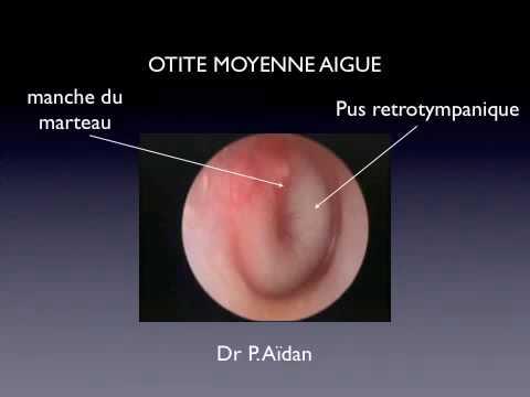hqdefault - Les maladies de l'oreille : Les otites moyennes aiguës