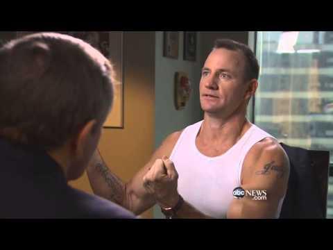 Brad Culpepper Discusses Survivor and Reveals His Injuries