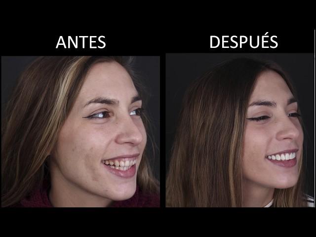 Estética Dental y carillas de composite
