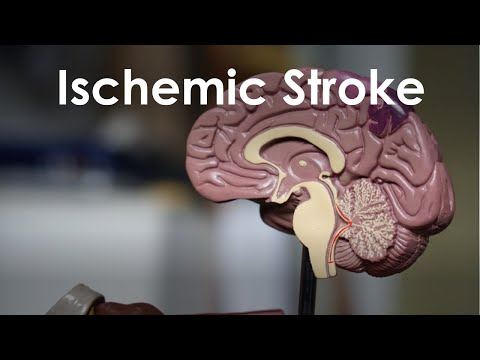 Ischemic Stroke and Transient Ischemic Attack for USMLE Step