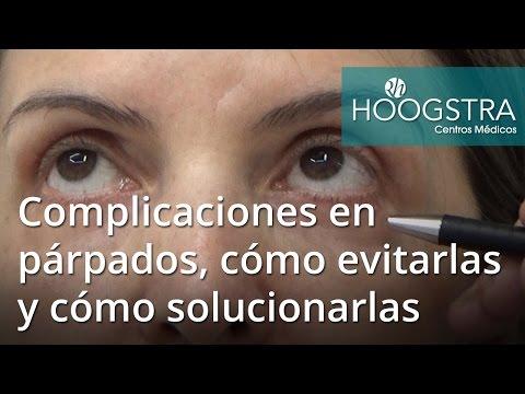 Complicaciones en párpados, cómo evitarlas y cómo solucionarlas (16159)