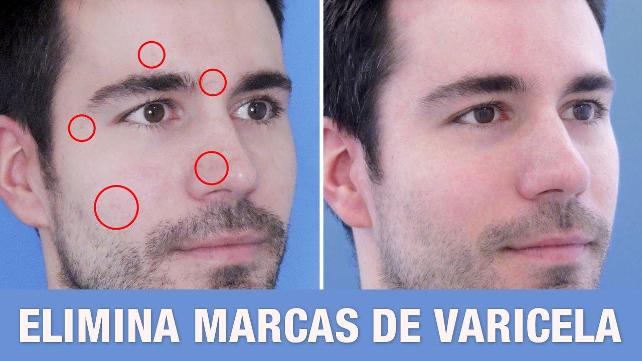 Cómo eliminar cicatrices de varicela y acné | Resultados ...