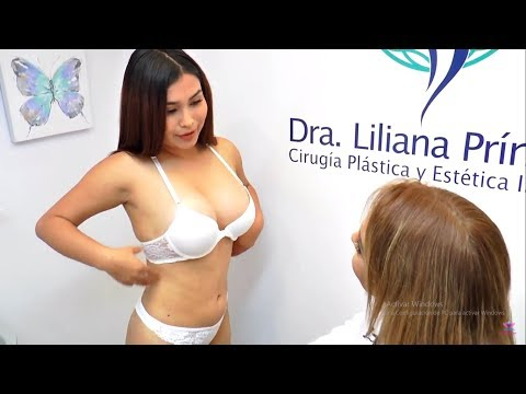 IMPLANTE DE MAMAS Y LIPOMARCACIÓN (DRA. LILIANA PRÍNCIPE - DARLENE)