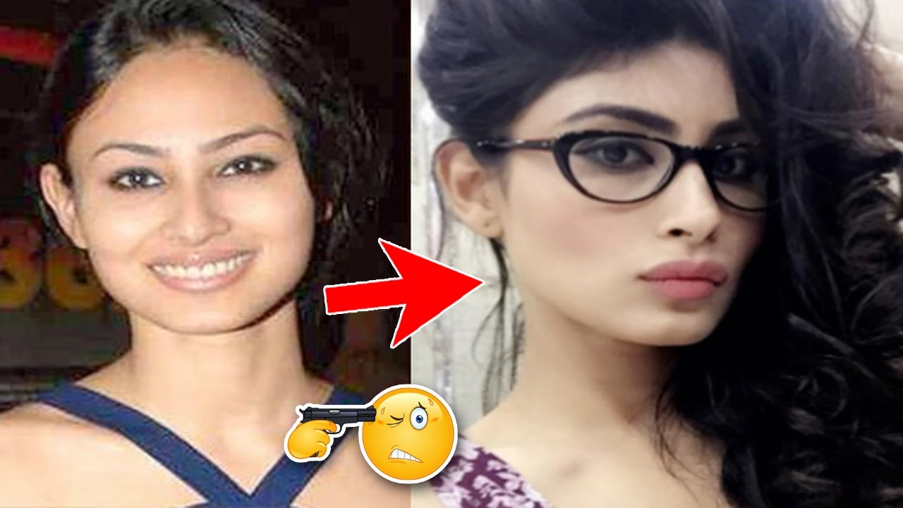 Mouni roy 03 before and after her cosmetic surgery