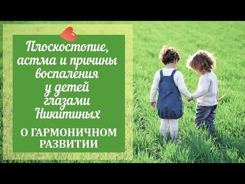 Плоскостопие у детей - симптомы и причины. Продольное