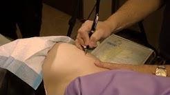 Naltrexone Pellet Implant Surgical Procedure
