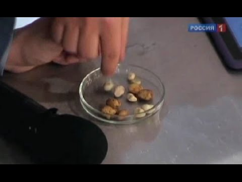 Как проявляются камни в желчном пузыре