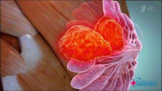 Здоровье  Фиброзно кистозная мастопатия(19 11 2017)