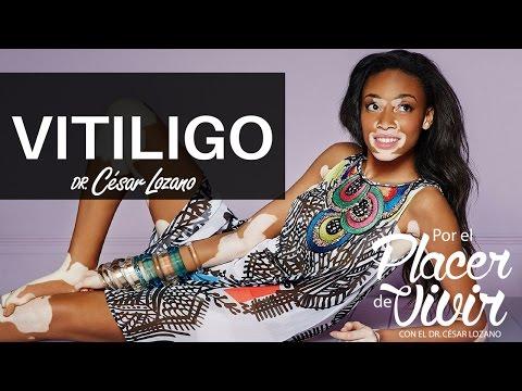 """""""Vitiligo""""  Por el Placer de Vivir con el Dr. César Lozano"""