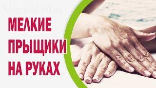 Мелкие прыщики на руках: причины появления, лечение, профилактика