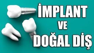 Dr. Turhan Güldaş - İmplant ile Naturel Diş Arasındaki Fark? -  Euro D'de Çook Yaşa Yaz Programında