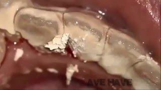 BEST COMPILATION plaque removal calcium extraction   Plaque calcite removal extraction