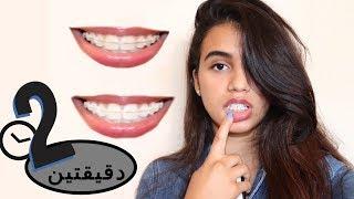 تبييض الأسنان في دقيقتين فقط!! (بياض مضمون) + 🛍 Giveaway