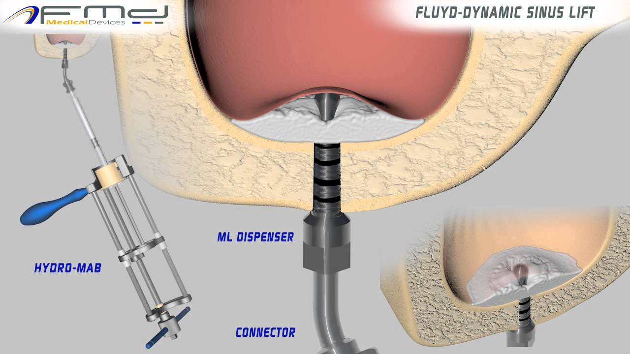 Sinus Floor Elevation Using Osteotomes : Fmd dental hydro mab ml fluyd dynamic sinus lift youtube
